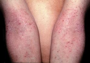 Atopichesky la dermatitis el ungüento el foro